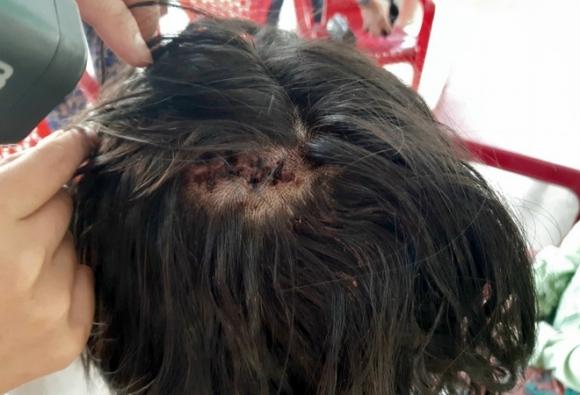 Nữ sinh bị gã côn đồ đánh dã man sau tai nạn: Nhập viện trong tình trạng hoảng loạn, khâu 10 mũi trên đầu - 1