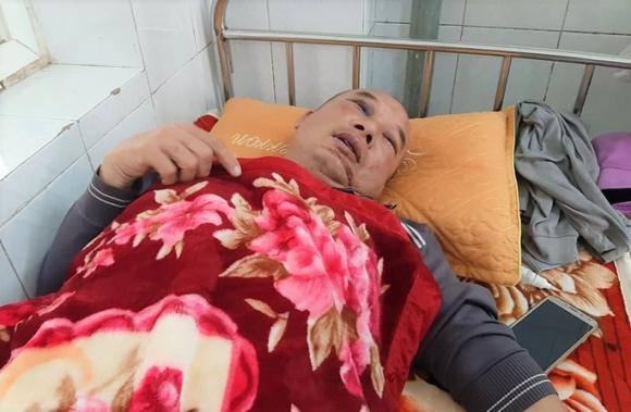 Bị khách siết cổ cướp xe taxi, tài xế giả chết mới thoát nạn - Ảnh 2.