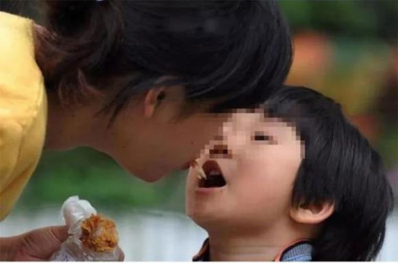 Loại vi khuẩn mà 70% người Việt đang nhiễm: Thuộc nhóm gây ung thư số 1, dễ lây lan cho nhau qua 4 thói quen tai hại khi ăn cơm - 2