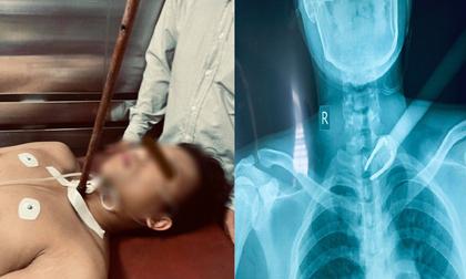 Kinh hoàng: Nam sinh Đại học Cần Thơ bị trộm chó bắn tên xuyên cổ