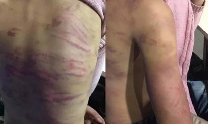 """Điều tra vụ thiếu nữ 15 tuổi bị mẹ đẻ cùng """"người tình"""" bạo hành dã man"""