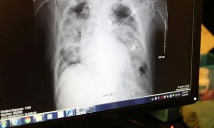 Mỹ: Tử vong sau khi được ghép phổi của người nhiễm... virus SARS-CoV-2