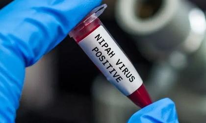Virus Nipah gây phù não được cảnh báo có thể là đại dịch tiếp theo: Chưa có vắc-xin phòng bệnh và có thể ủ bệnh hơn 1 tháng mà không biết