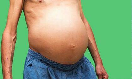 3 dấu hiệu ở bụng cho thấy nguy cơ mắc ung thư cao, nếu có cả thì bạn nên đi khám ngay