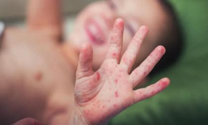8 bé phải lọc máu, thở máy vì 'tay chân miệng': Bác sĩ dặn trẻ sốt đừng đi lớp, mẹ nắm cách phòng ngừa