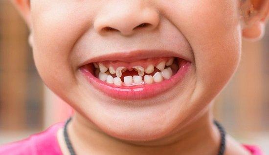 Sâu răng làm giảm chức năng nhai