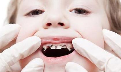 Nguy hại khôn lường từ việc không điều trị răng sâu cho trẻ
