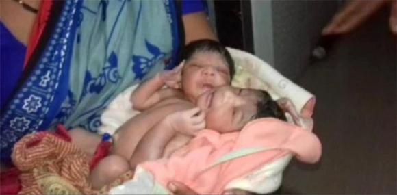 Không đi khám thai thường xuyên, cặp vợ chồng sửng sốt khi sinh ra đứa con có 2 đầu và 3 cánh tay - Ảnh 1.