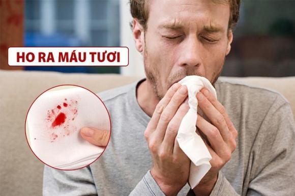 Thêm 1 triệu chứng Covid-19 mới: Bệnh nhân ho ra máu; Thế giới ghi nhận gần 38 triệu người chết - Ảnh 1.