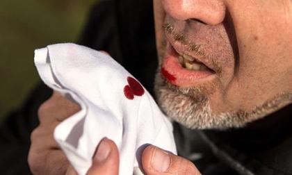 Thêm 1 triệu chứng Covid-19 mới: Bệnh nhân ho ra máu; Thế giới ghi nhận gần 38 triệu người chết