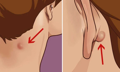 Cảnh giác với 4 dấu hiệu trên cổ cho thấy tế bào ung thư đã 'thức giấc'