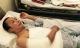 Hoại tử bắp tay vì mũi tiêm giảm đau của bệnh viện