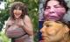 Người phụ nữ chuyển giới bị bác sĩ 'dởm' bơm xi măng vào mặt