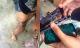 iPhone phát nổ trong túi quần vì nắng nóng, nam thanh niên bị bỏng nặng