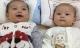 15 năm nỗ lực thụ thai của mẹ bị cắt hai vòi trứng