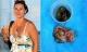 Phát hiện bào thai lưu hơn 40 năm trong cơ thể là chị em song sinh của mình