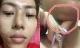 Hà Nội: Hàng loạt nạn nhân mũi lệch, môi sưng do bị tiêm chất làm đầy dởm