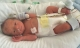 Bác sĩ mổ đẻ tá hỏa không thấy em bé trong bụng sản phụ