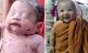 Bé sơ sinh sống sót kỳ diệu ở Thái Lan ngày càng bụ bẫm