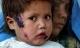 Căn bệnh ngoài da quái ác gieo rắc nỗi kinh hoàng lên toàn vùng Trung Đông