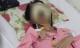 Cô gái mắc chứng hoại tử lạ cả khuôn mặt dần bị ăn mòn