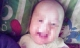 Hà Giang: Bé trai hơn 2 tháng tuổi tử vong bất thường sau điều trị vàng da