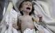Em bé Syria với thân hình chỉ còn da bọc xương giữa bom đạn chiến tranh khiến cả thế giới xót xa