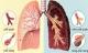 Biểu hiện bạn đã mắc ung thư phổi giai đoạn đầu: Chuyên gia nhắc dù 1 dấu hiệu nhỏ cũng không nên bỏ qua