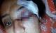 Gã chồng trăng hoa đánh vợ đến sảy thai, mù mắt vì không được mua ôtô
