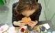 Cô gái trẻ liên tục thèm ăn, BS nói cả đời phải dùng thuốc vì thói quen xấu buổi sáng
