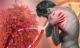 BS tiết lộ: Ung thư phổi giai đoạn cuối vẫn có thể sống thêm 10 năm nhờ 2 giải pháp mới